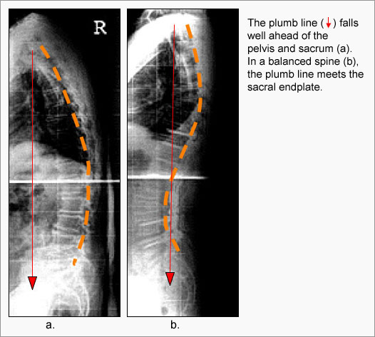 Scoliosis Muscle Imbalance