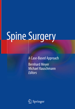 Spine Surgery by Bernhard Meyer and Michael Rauschmann (Eds.)